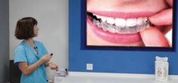L'astuce dentaire – Consultation 5 : le blanchiment dentaire, nocif?