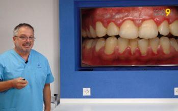 L'astuce dentaire – Consultation 3: C'est quoi la parodontite?