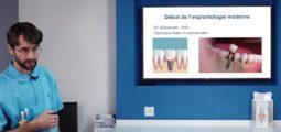 L'astuce dentaire – Consultation 8: Les implants; céramique ou titane?